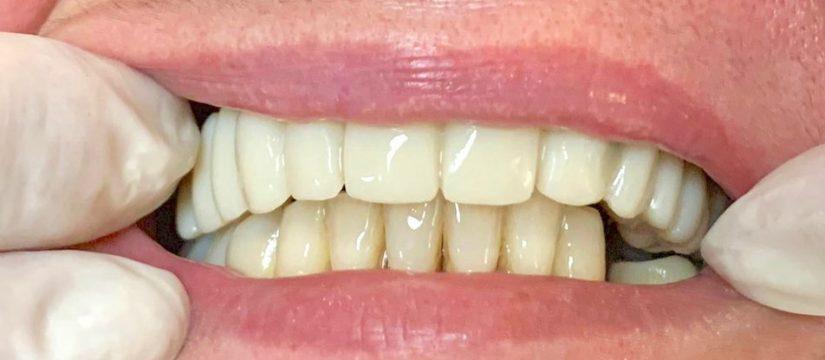 riscuri implant dentar Ce riscuri presupune intervenția cu implant dentar? dinti frumosi 825x360