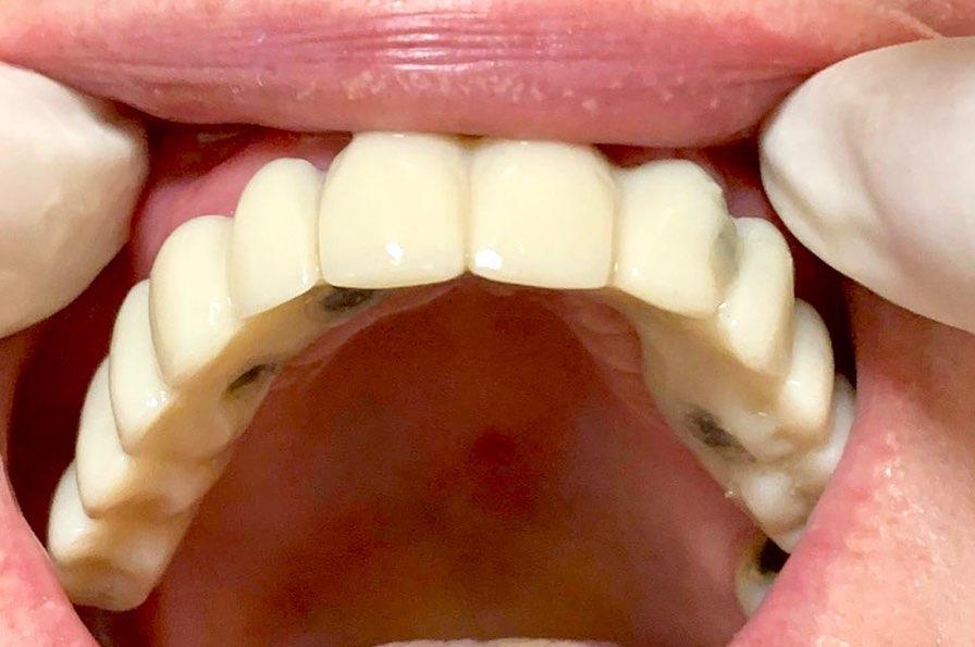 Proteza dentara fixa